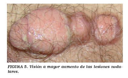 Cancer de uretra hombre sintomas. Cancer uretra sintomas. Epidemiologie