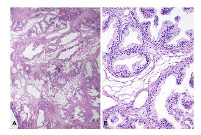 iperplasia adenomatosa atipica prostata
