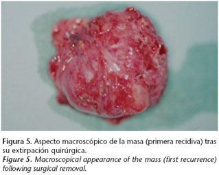 Cancer sarcoma sinovial sintomas. Papiloame pe chipul unui copil