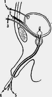 Kanefron a férfiakban a prosztatitis