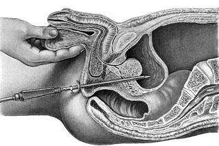 Kanefron a férfiakban a prosztatitis Rossz a férfiak prosztatitis