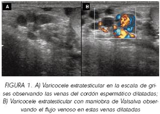 tratamentul eficient de varicosera
