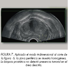Prostata microflora cocci analni sex ,dyne s medem z receptu prostatitidy Hpv u muzu lecba