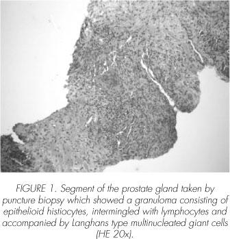 prostatitis scielo